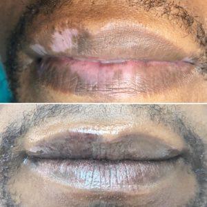 Vitiligo lips